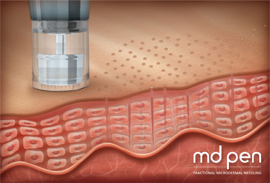 microneedling-improve-appearance